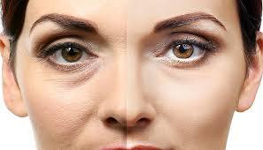 acido ialuronico foto prima e dopo