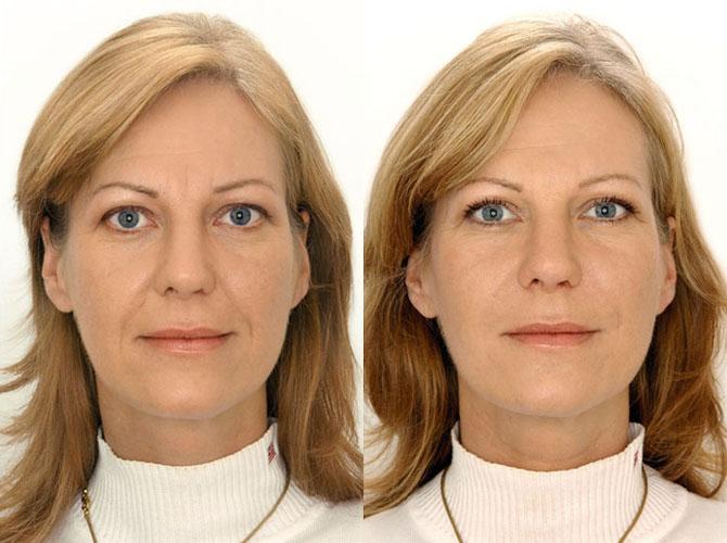 Biorivitalizzazione foto prima e dopo il trattamento