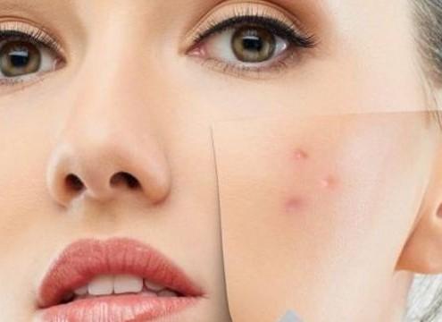Come eliminare le cicatrici da acne